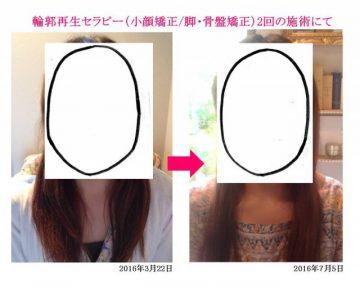お顔の輪郭2